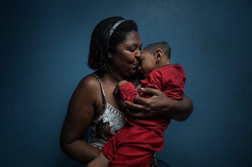Brasil_Niño_con_microcefalia_Autor_Felipe_Fittipaldi_CC (1)
